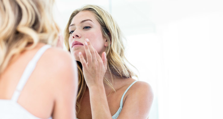 Nine Tips to Take Control of Your Acne