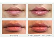 Before and After Photos of Replenix Pure Hydration Plumping Lip Treatment SPF 30