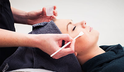 Microdermabrasion and Chemical Peels