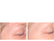 Baby Quasar Plus Wrinkle Reducing Therapy